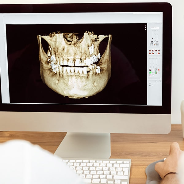 A dentist working with a 3D image of a jaw on an office computer