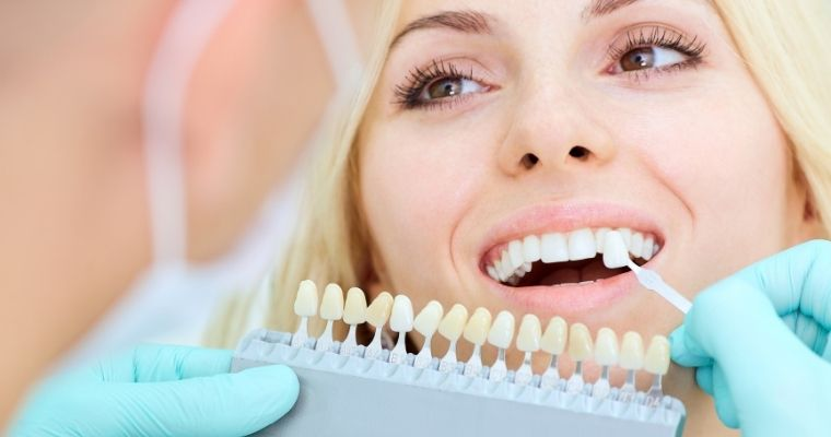 woman smiling, dentist holding up shades of teeth whitening colors